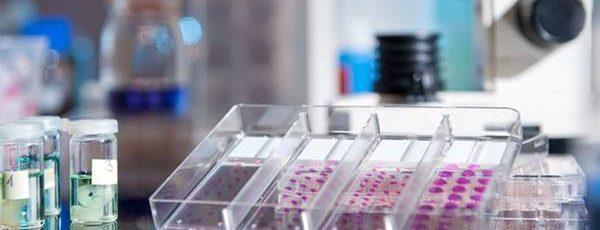 Patoloji-Laboratuvarı-Sarf-Malzemeleri-Kategorisi